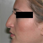 Image of patient's nose before rhinoplasty