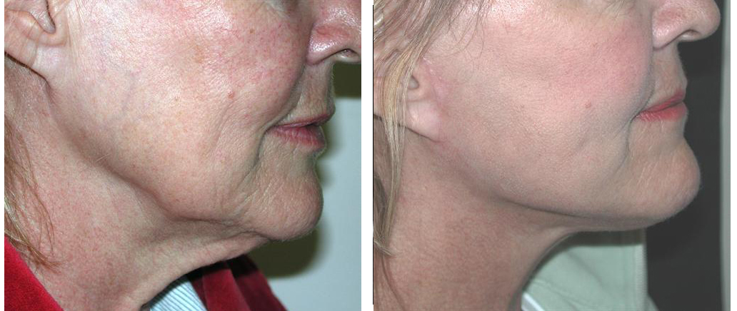 before and after facelift procedure from local toronto female from doctor richard rival