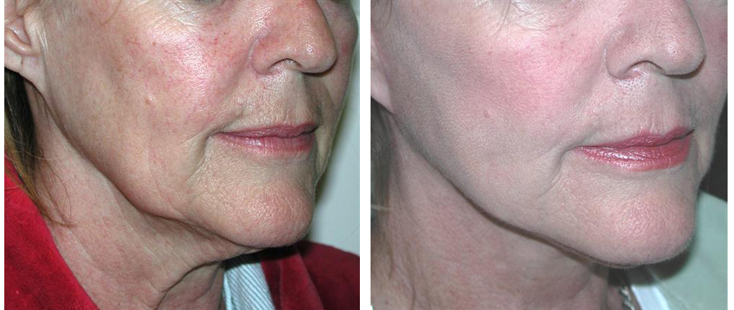local toronto female before and after facelift procedure