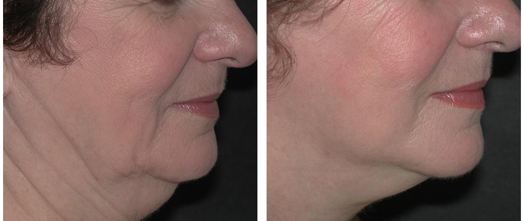 toronto female with before and after facelift from doctor richard rival