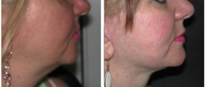 facelift before and after procedure on female toronto woman