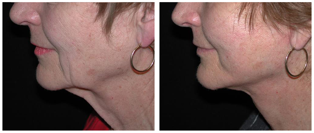 local toronto woman with facelift procedure from plastic surgeon