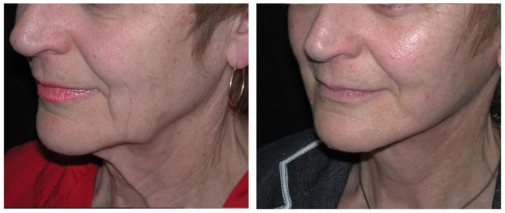 toronto female before and after facelift procedure from doctor richard rival
