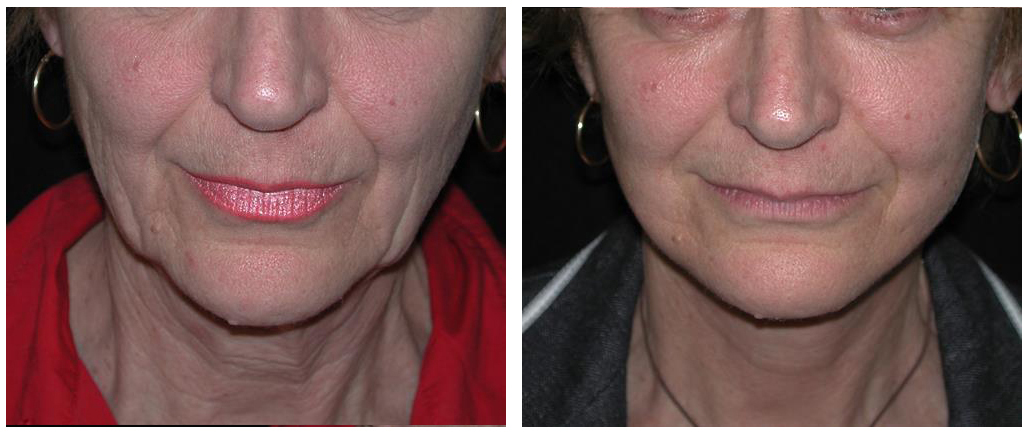 before and after facelift procedure of toronto female