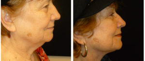 toronto female from before and after facelift procedure