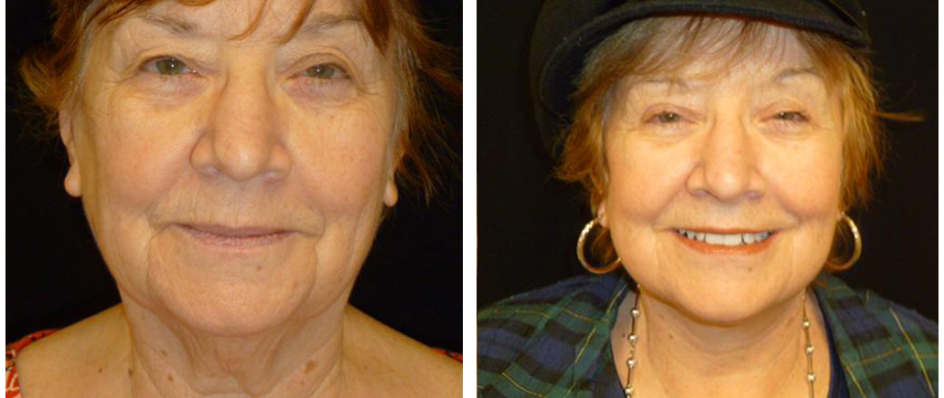 local toronto woman before and after facelift procedure