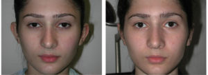 female teenager with Otoplasty procedure before and after toronto