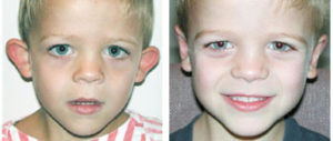 toronto male boy child with Otoplasty procedure from plastic surgeon