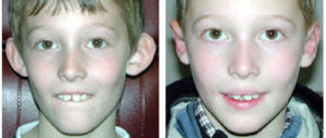 male child with Otoplasty procedure from toronto plastic surgeon