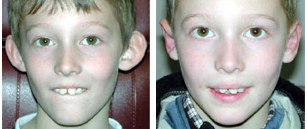 cosmetic otoplasty ear surgery case from local toronto boy