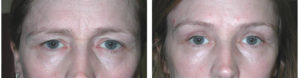 toronto woman before and after browlift procedure from richard rival