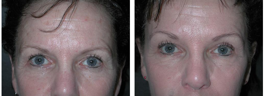 toronto woman with browlift procedure results from doctor richard rival