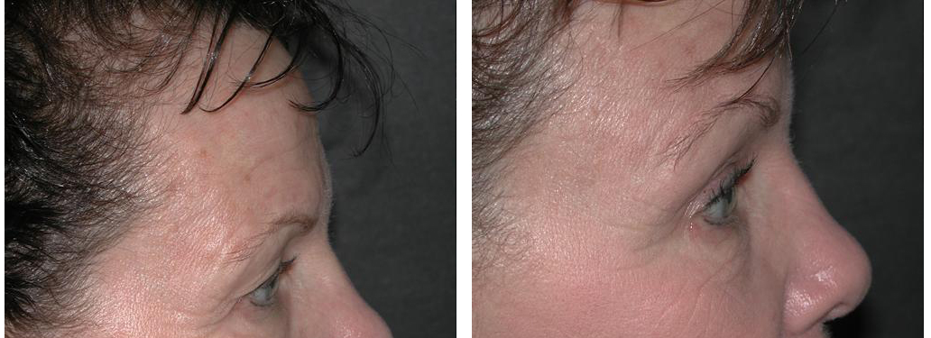 local toronto female browlift procedure from doctor richard rival