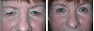 eye lift procedure from toronto plastic surgery on woman patient
