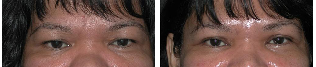 toronto eye lift procedure on female from plastic surgeon