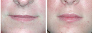 The before and after results of derma filler on female lips of Toronto woman.