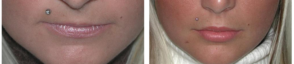 Lip augmentation from dermal fillers on before and after toronto female