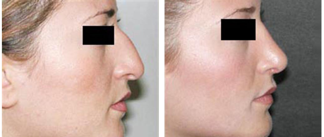 female rhinoplasty sideview