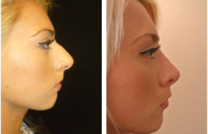 amazing before and after Rhinoplasty photo
