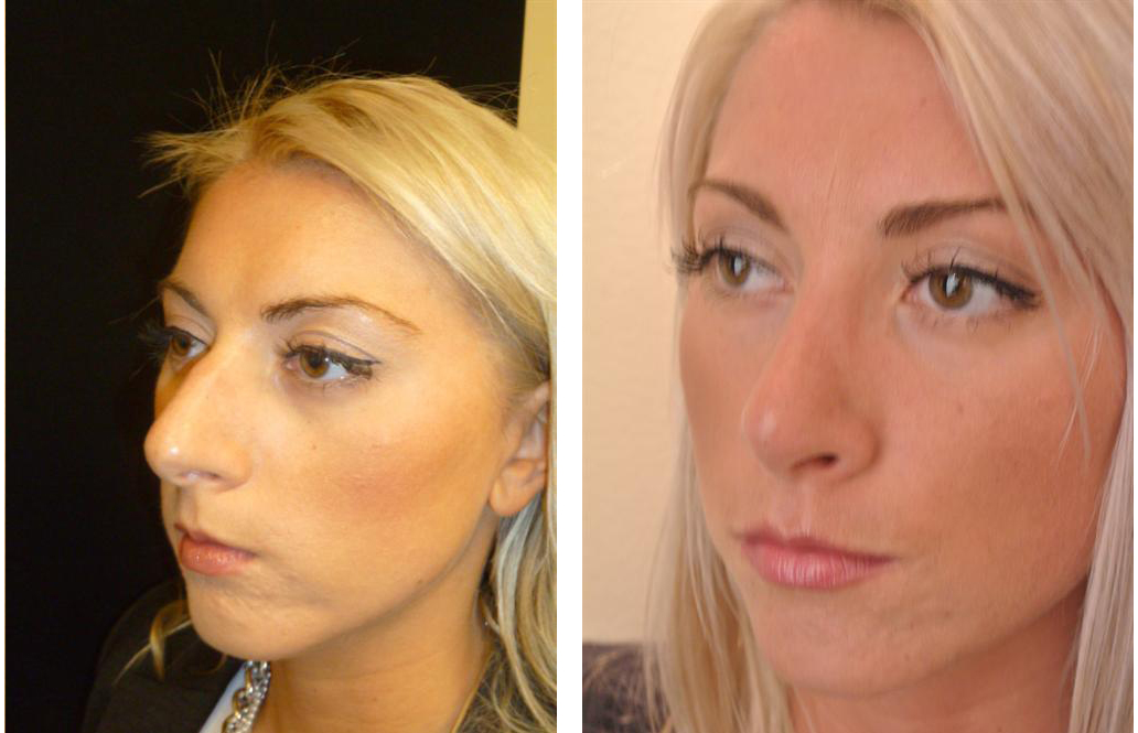 before and after rhinoplasty by Toronto cosmetic surgeon