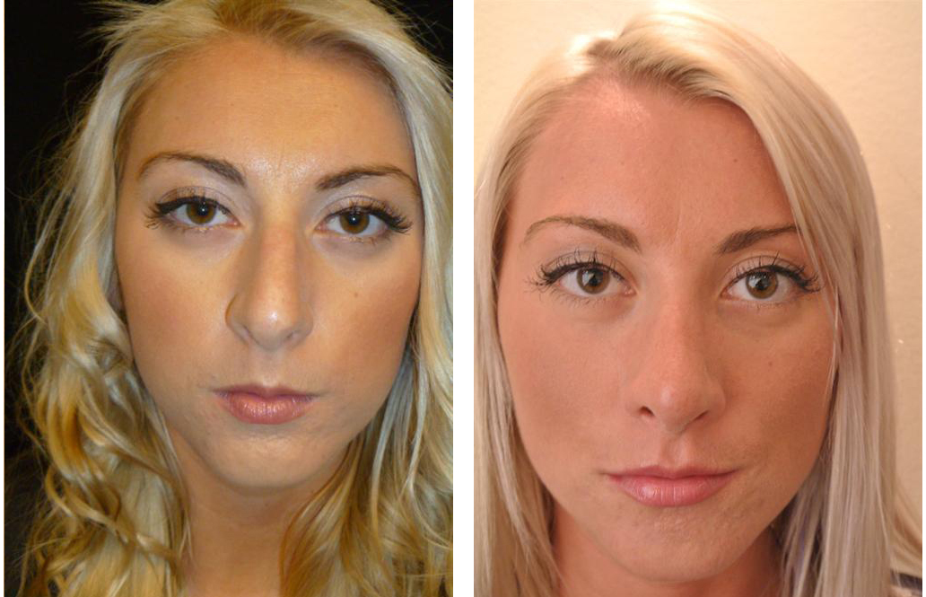 Toronto rhinoplasty surgeon before and after photos