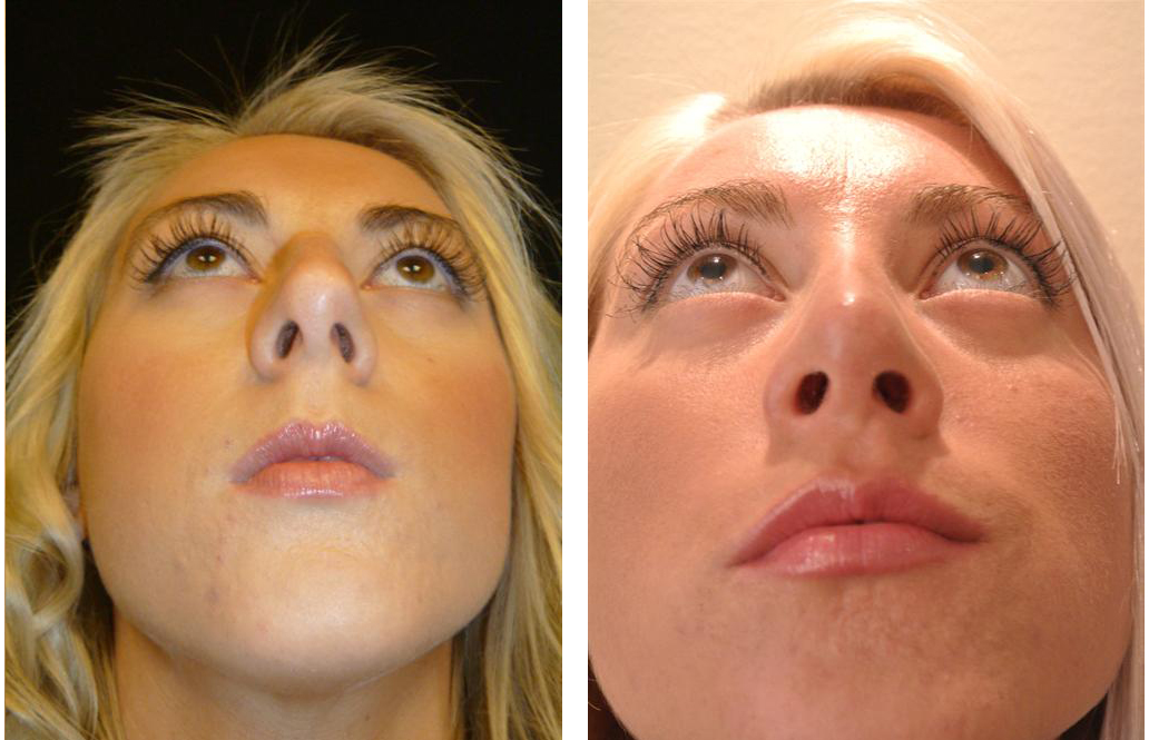 Dr. Richard Rival's before and after nose job surgery
