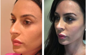 Toronto Rhinoplasty before and after by Toronto's best plastic surgeon
