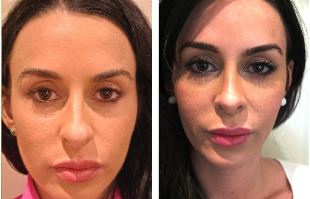 Best plastic surgeon rhinoplasty before and after
