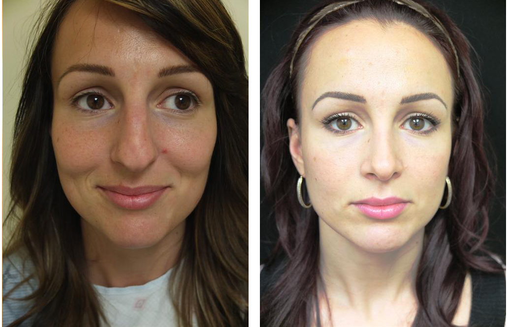 Brunette female nose job before and after.