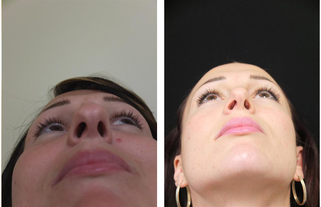 up nose view of before and after nosejob by Toronto plastic surgeon