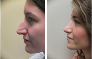 Toronto rhinoplasty performed on female patient