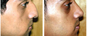 before and after male rhinoplasty photograph