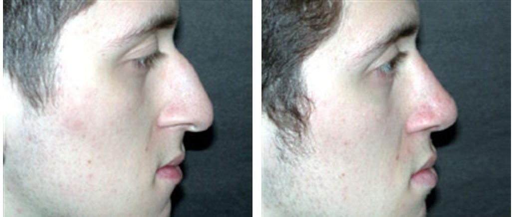 white male before and after rhinoplasty