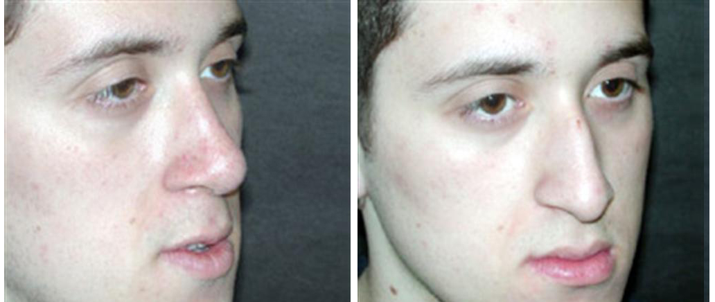 angle view of male nosejob in toronto by dr. richard rival