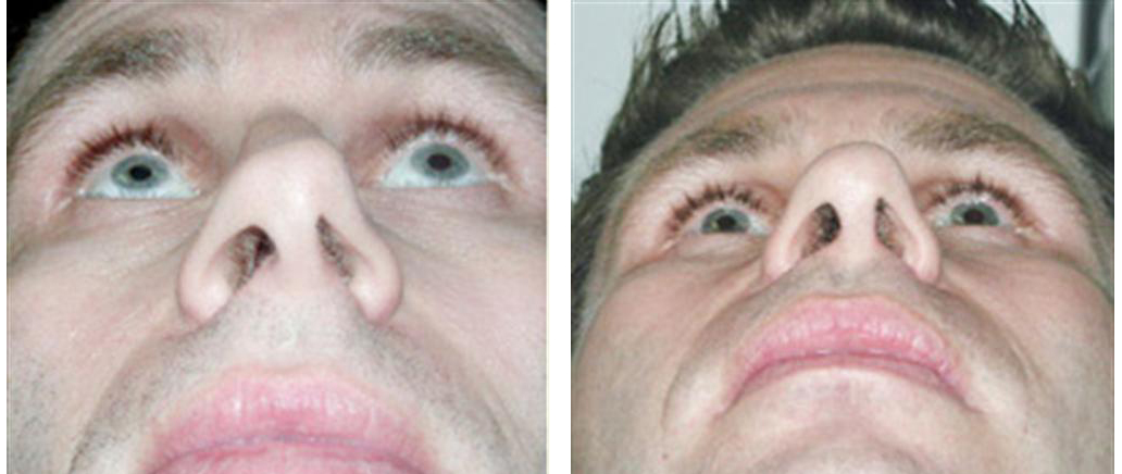 up the nose view of nosejob before and after of toronto male patient