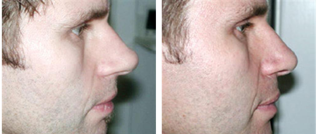 plastic surgery toronto before and after photos of a rhinoplasty