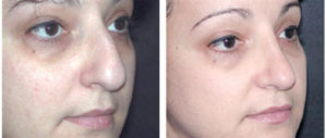 before and after female rhinoplasty by dr. richard rival