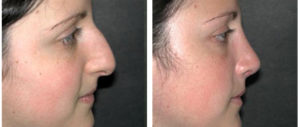 side view of toronto nosejob on a young female
