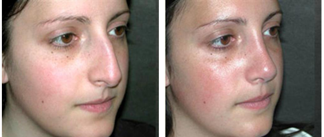 Dr. Richard Rival rhinoplasty in toronto on female