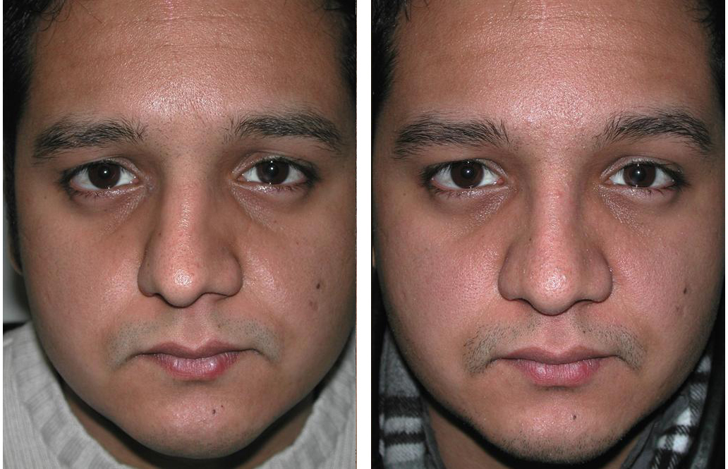Toronto rhinoplasty on tanned skinned man