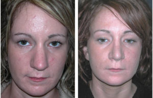 white middle aged female rhinoplasty on toronto woman