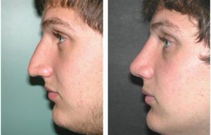 male nosejob before and after photos by Dr. Richard Rival