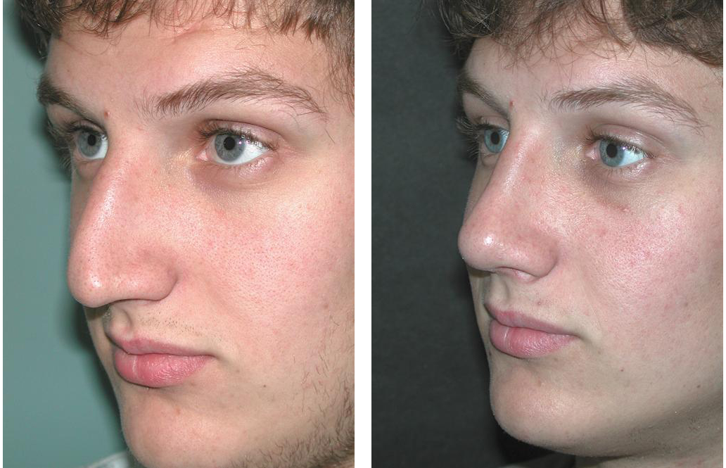 side angle of toronto rhinoplasty by Dr. Rival of the Plastic Surgery Skin Clinic