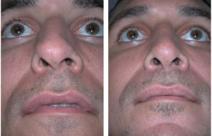 up nose view of toronto rhinoplasty on male