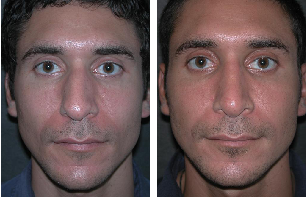 front view of toronto rhinoplasty on male
