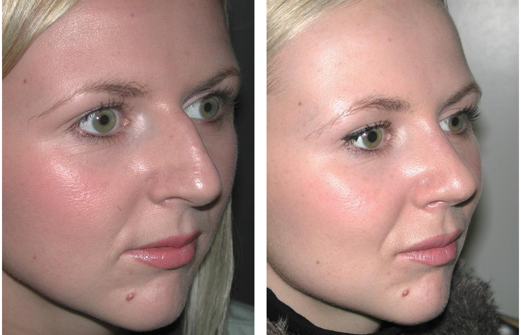 before and after photos of side angle view of female rhinoplasty in toronto