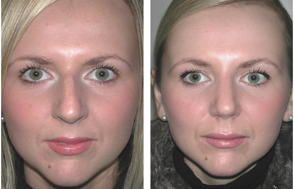 toronto rhinoplasty before and after photos