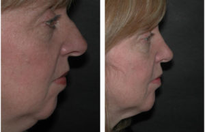 middle aged rhinoplasty on Toronto woman by Dr. RIval