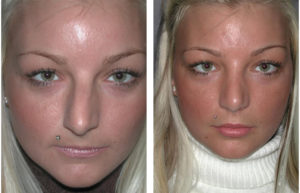 toronto rhinoplasty before and after on female patient with blonde hair