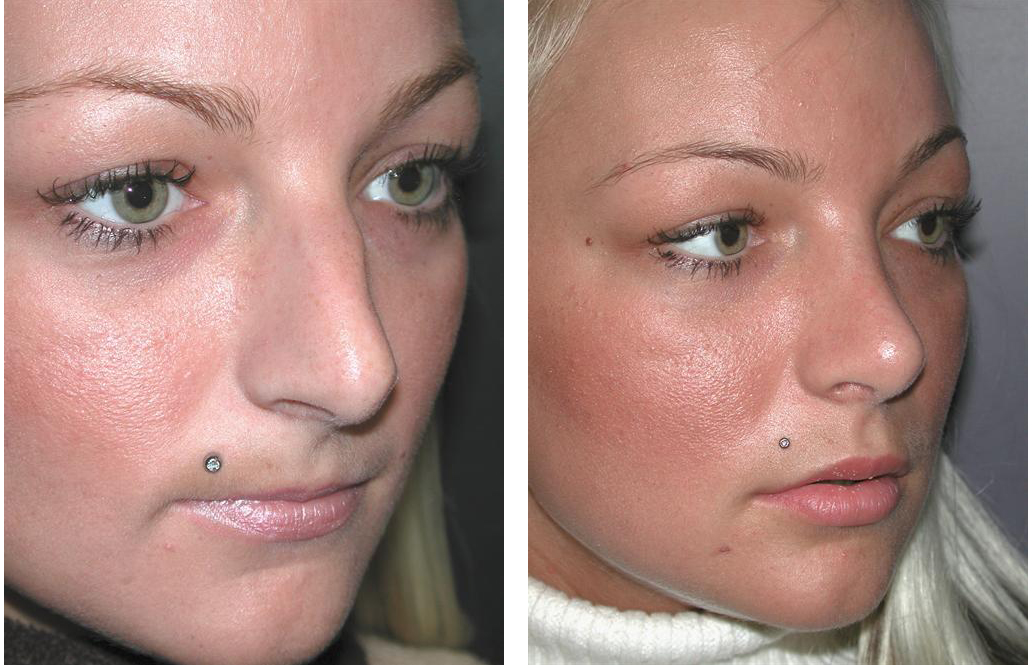 side view of toronto rhinoplasty before and after on female